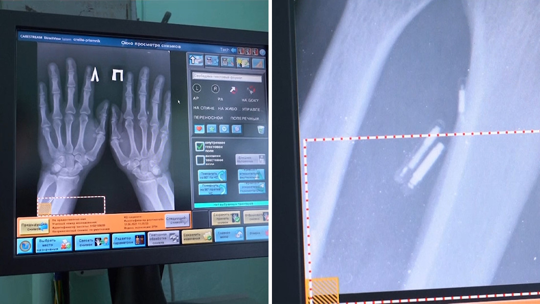 """A Russian doctor implants 5 microchips in his hands to make his life """"easier"""" (VIDEO) - Market Research Telecast"""