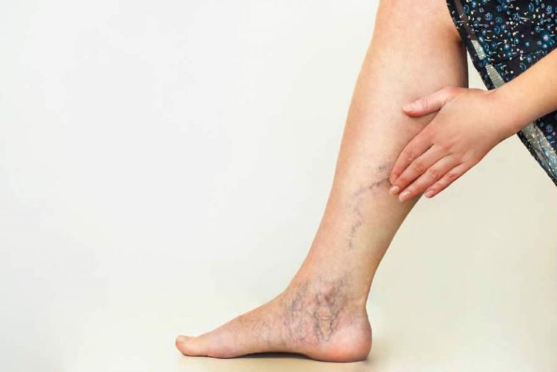 Varicose veins in the legs: a problem to pay attention to beyond aesthetics